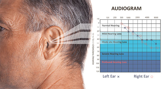 Schedule Your Hearing Test