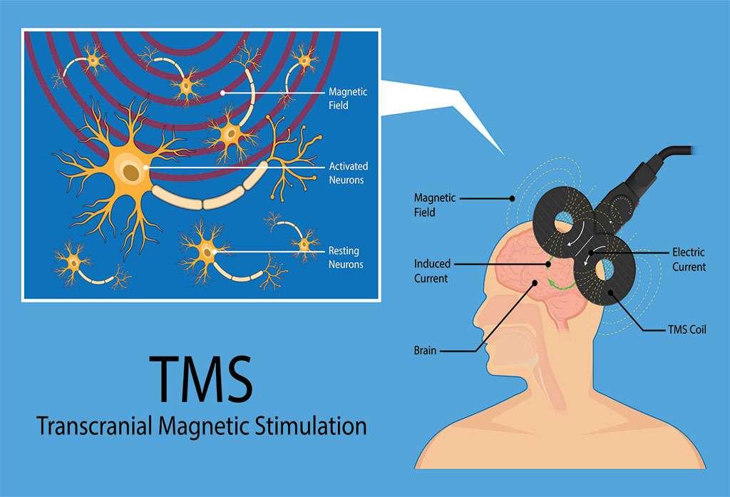 Transcranial magnetic stimulation (TMS) to treat tinnitus